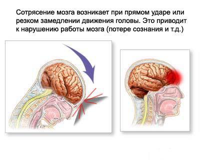 Признаки легкого сотрясения мозга ноутбуком