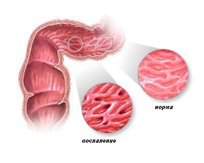 Температура боль в горле 2 месяца