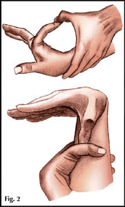 Синдром Марфана - Причины, симптомы и лечение. Журнал 69