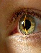 Глаукома краеугольная