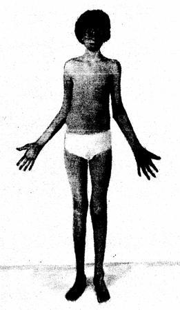 Синдром Марфана - Причины, симптомы и лечение. Журнал