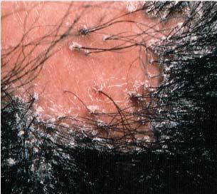 Болезненность кожи головы жирность волос выпадение