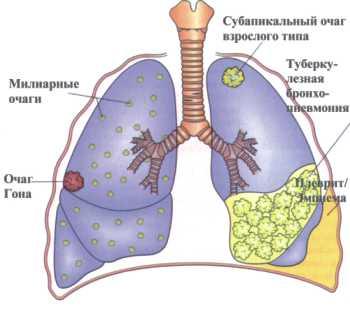 лечение крови у человека от паразитов