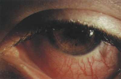 Облегчить боль зубов комаровский видео