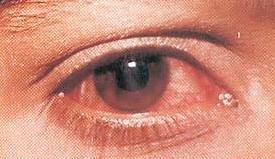 Как сделать глаза опухшими фото 440